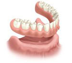 Full-arch dentures