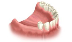 Lower arch missign teeth