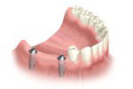 replacing two missing teeth with dental implants